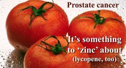 gyulladt prosztata Mi lehet beteg a prosztatitisből